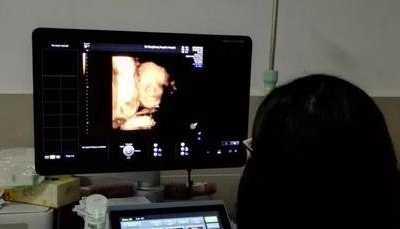 一看胎儿鼻子差点背过气去 怀孕5个月胎儿b超图