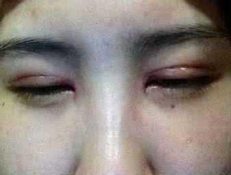 当然是没有恢复期的 哪种双眼皮手术最好